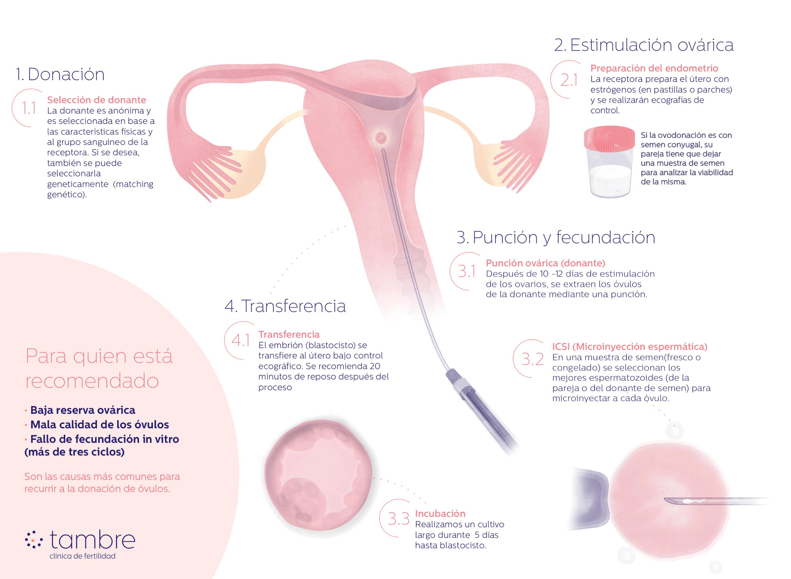 Infografía Ovodonación Tambre