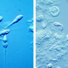Biopsia testicular