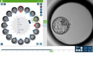 Nuevas Tecnologías en reproducción asistida