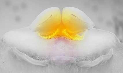 ¿Los quistes de ovarios pueden desaparecer solos?